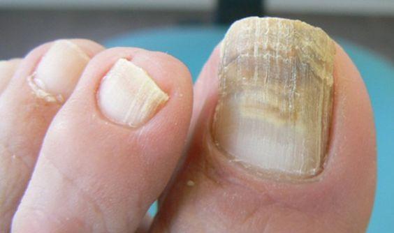 Remedio casero para hongos de los pies