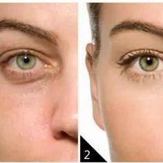 Remedio natural para eliminar las bolsas de los ojos